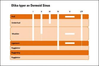 <p>Schematisk bild av olika typer av Dermoid Sinus samt LTF (efter Salmon Hillbertz 2007).</p> <ul><li><strong>Typ I: </strong>Sträcker sig ner till supraspinala ligamenten* och i halsregionen troligtvis till nacksenan, till vilken den är fäst.</li> <li><strong>Typ II: </strong>Sträcker sig inte ända ner till supraspinala ligamenten*, men är förbunden till den via en bindvävssträng.</li> <li><strong>Typ III:</strong> Sträcker sig inte ner till och är inte förbunden med supraspinala ligamenten*.</li> <li><strong>Typ IV: </strong>Fäster i ryggmärgen.</li> <li><strong>Typ V: </strong>Saknar hudöppning, har ingen bestämd plats i någon specifik vävnad.</li> <li><strong>LTF: </strong>Saknar hudöppning, sträcker sig ner till supraspinala ligamenten men är förbunden till ryggmärgen via en sträng.</li> </ul><p>* Supraspinala ligament löper längs ryggradens övre del.</p>